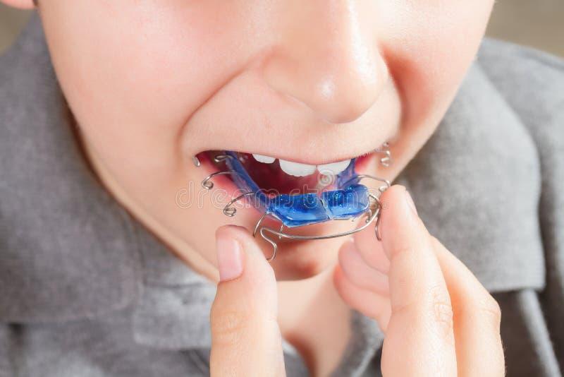Bambino con l'apparecchio ortodontico fotografie stock libere da diritti