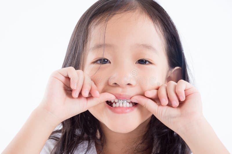 Bambino della ragazza che mostra i denti con il sigillante d'argento del dente dell'amalgama fotografia stock