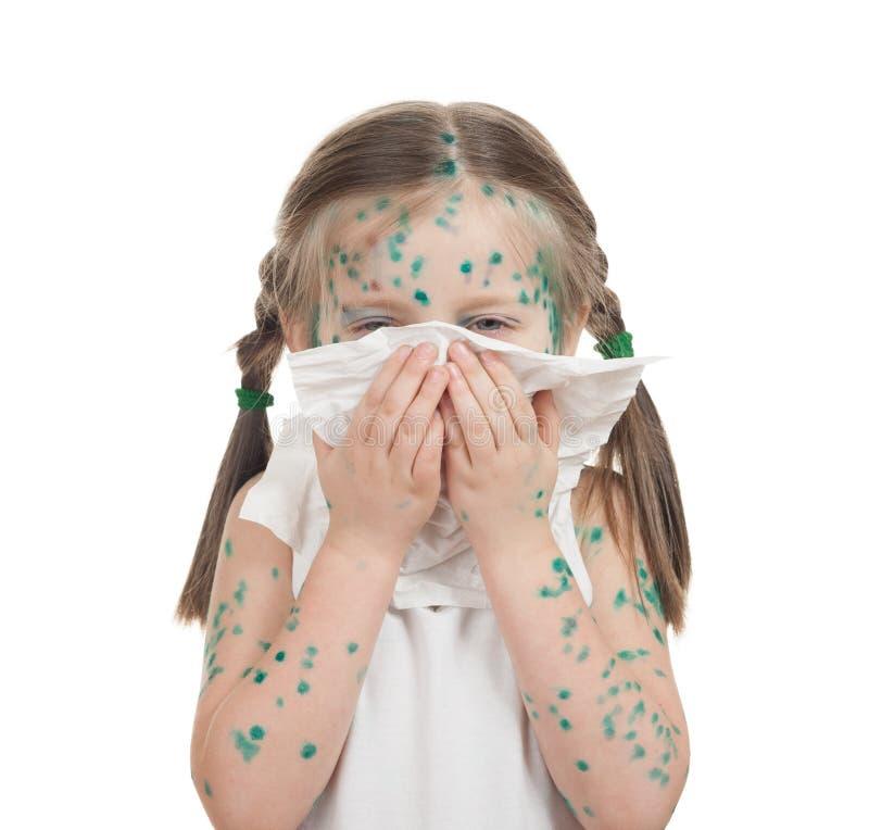 Download Bambino malato. varicella fotografia stock. Immagine di nose - 30831012