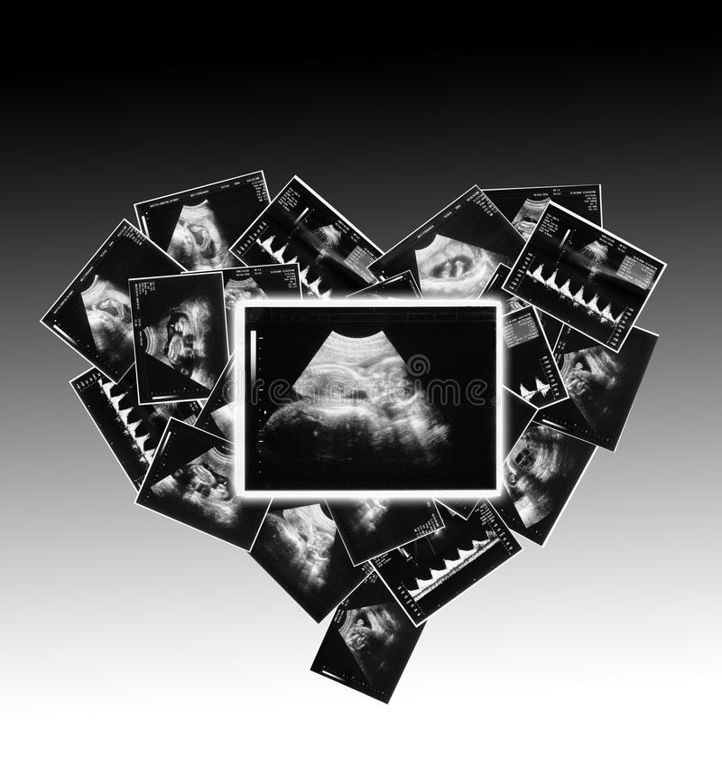 bambino sull'immagine di ultrasuono fotografia stock libera da diritti