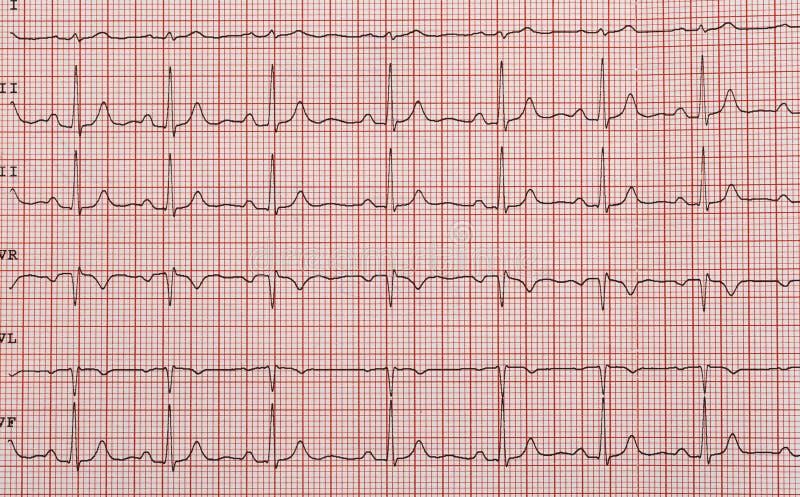 Band met het cardiogram stock foto