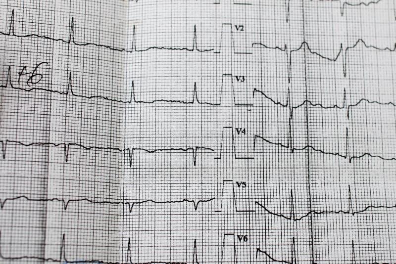 Band met het cardiogram stock afbeeldingen