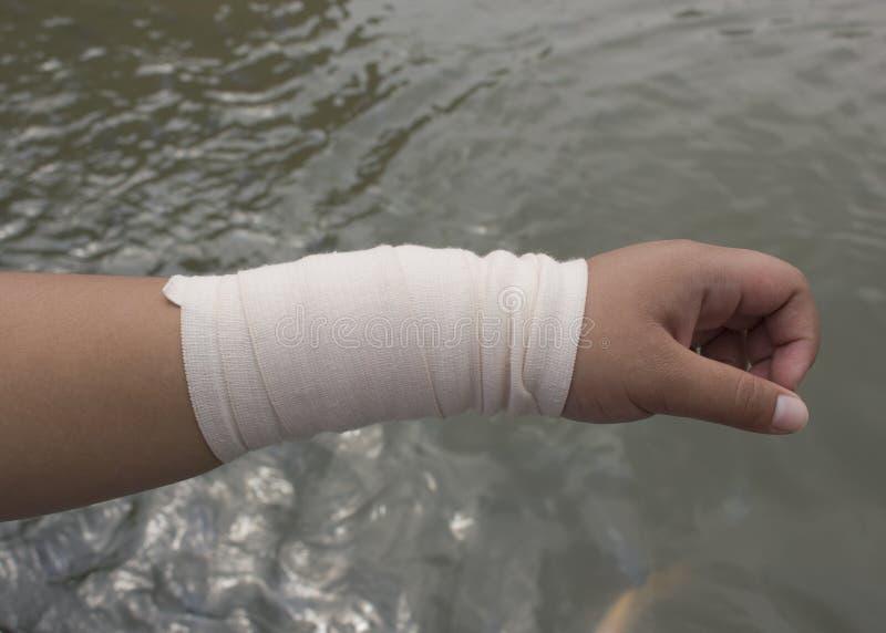 Bandażująca ręka zdjęcie stock