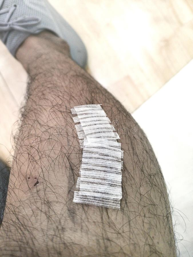 Bandage adh?sif sur la jambe inf?rieure photographie stock