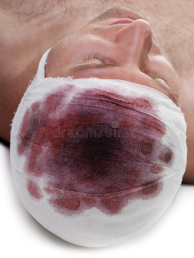 Bandage on blood wound head. Bandage on human brain concussion blood wound head stock image