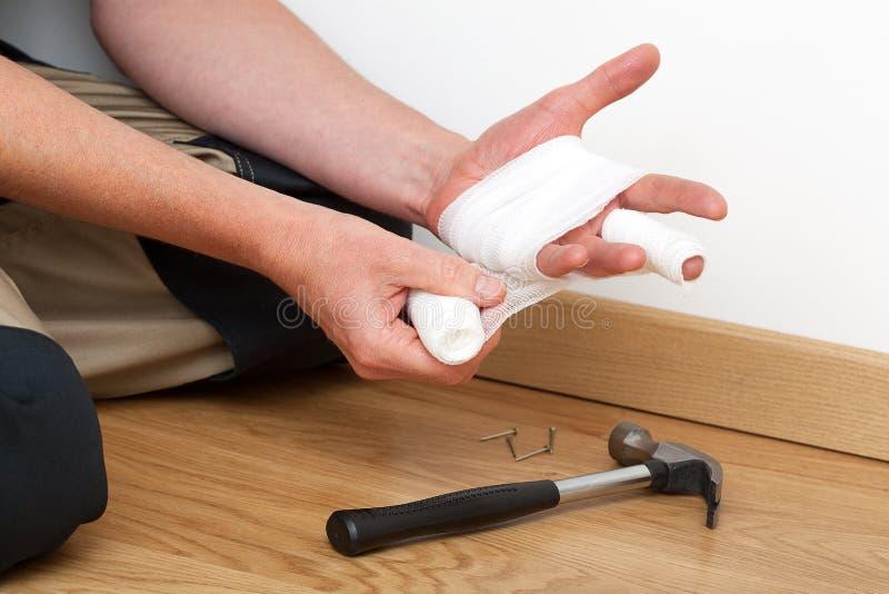 Bandage de la main blessée photos libres de droits