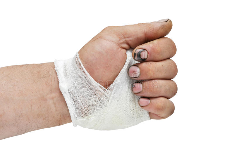 Download Bandage on his hand stock image. Image of fracture, insurance - 26156423