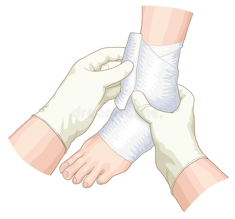The bandage on the joint. The bandage on the joint illustration stock illustration
