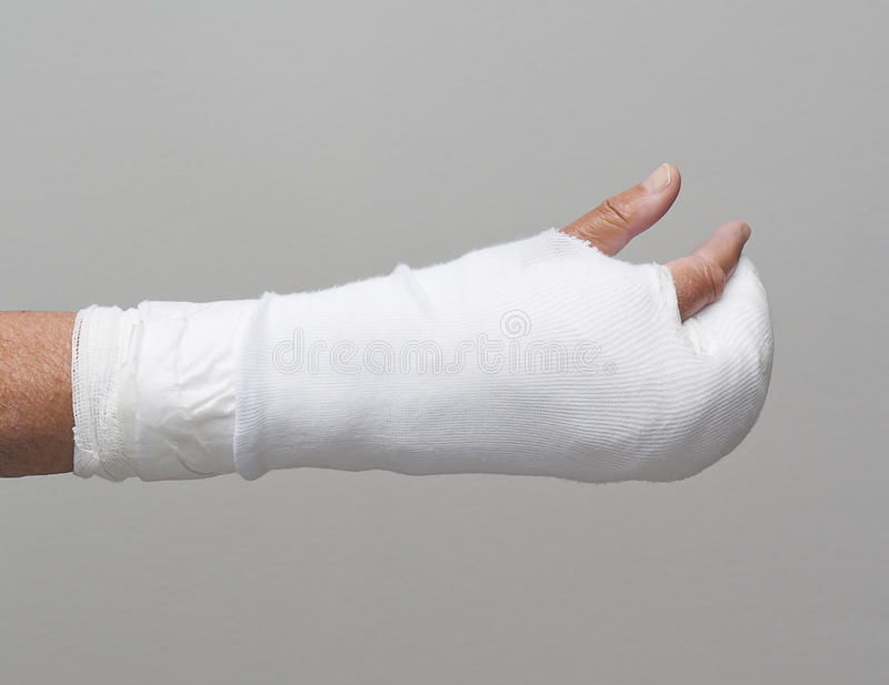 Download Bandaged arm and fingers stock image. Image of white - 15947415