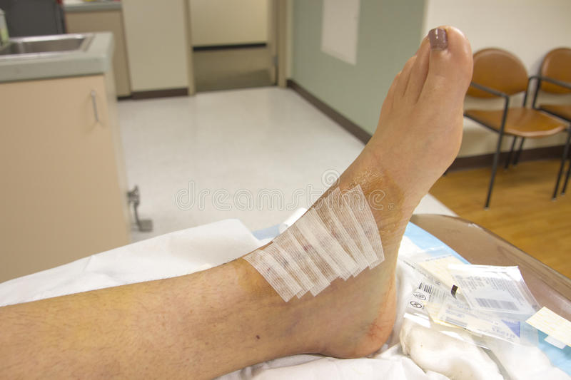 Bandages over stitches on human ankle royalty free stock photos