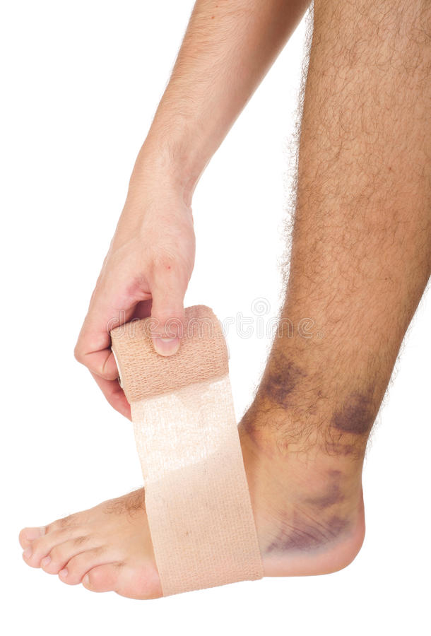 Bandaging a sprained ankle stock photos