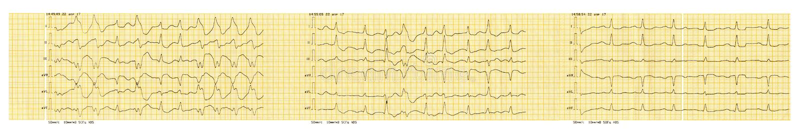 Bande d'ECG avec le paroxysme de la fibrillation auriculaire et la restauration du rythme de sinus illustration libre de droits