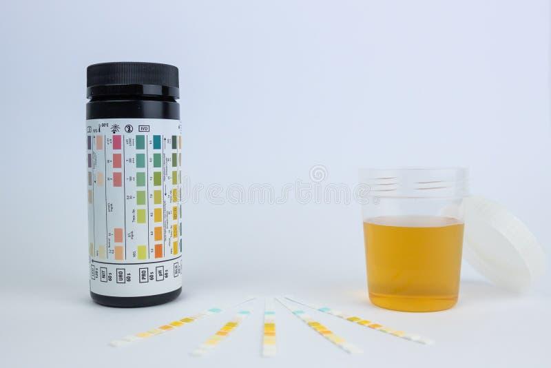 Bande della prova di Urin, prova di Urinanalyses, del glucosio e della proteina immagine stock libera da diritti