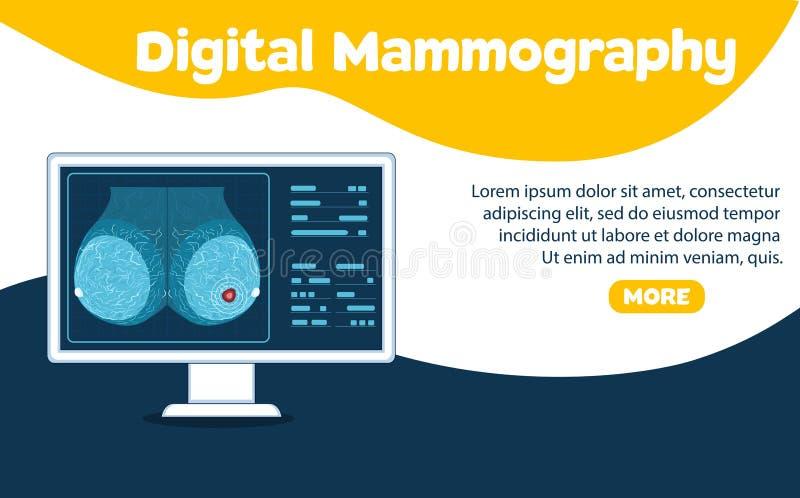 Bandeira da mamografia de Digitas ilustração stock
