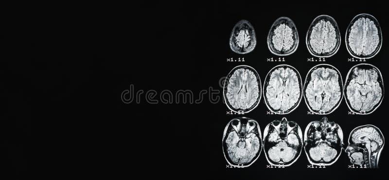 bandeira MRI do cérebro de uma pessoa saudável em um fundo preto com luminoso cinzento No lugar esquerdo sob a propaganda foto de stock royalty free