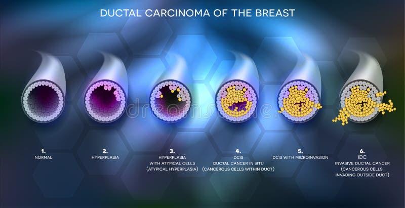 Bandera de la información del cáncer de pecho stock de ilustración