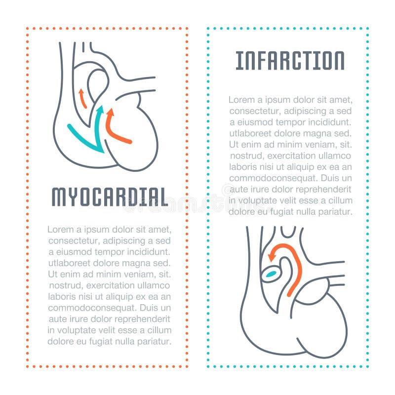 Bandera del sitio web y página del aterrizaje del infarto del miocardio ilustración del vector