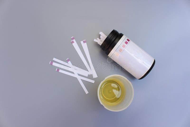 Bandes d'analyse d'urine photo libre de droits