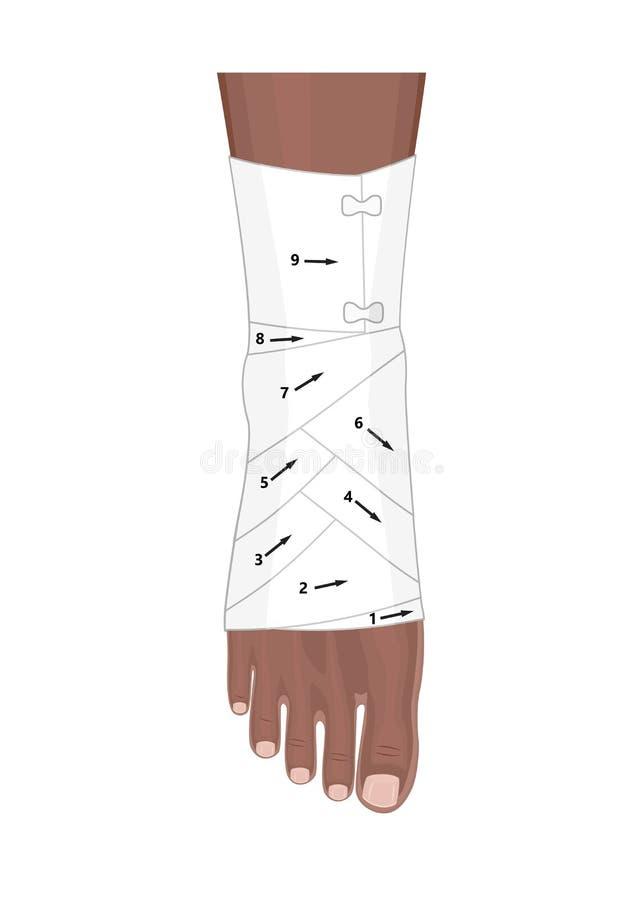 Bandez Ankle_Wrapping avec un bandage élastique de tissu avec des flèches illustration de vecteur