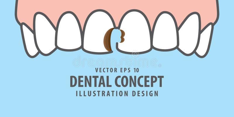 Banner Upper Cavities teeth illustration vector on blue background. Dental concept. stock illustration