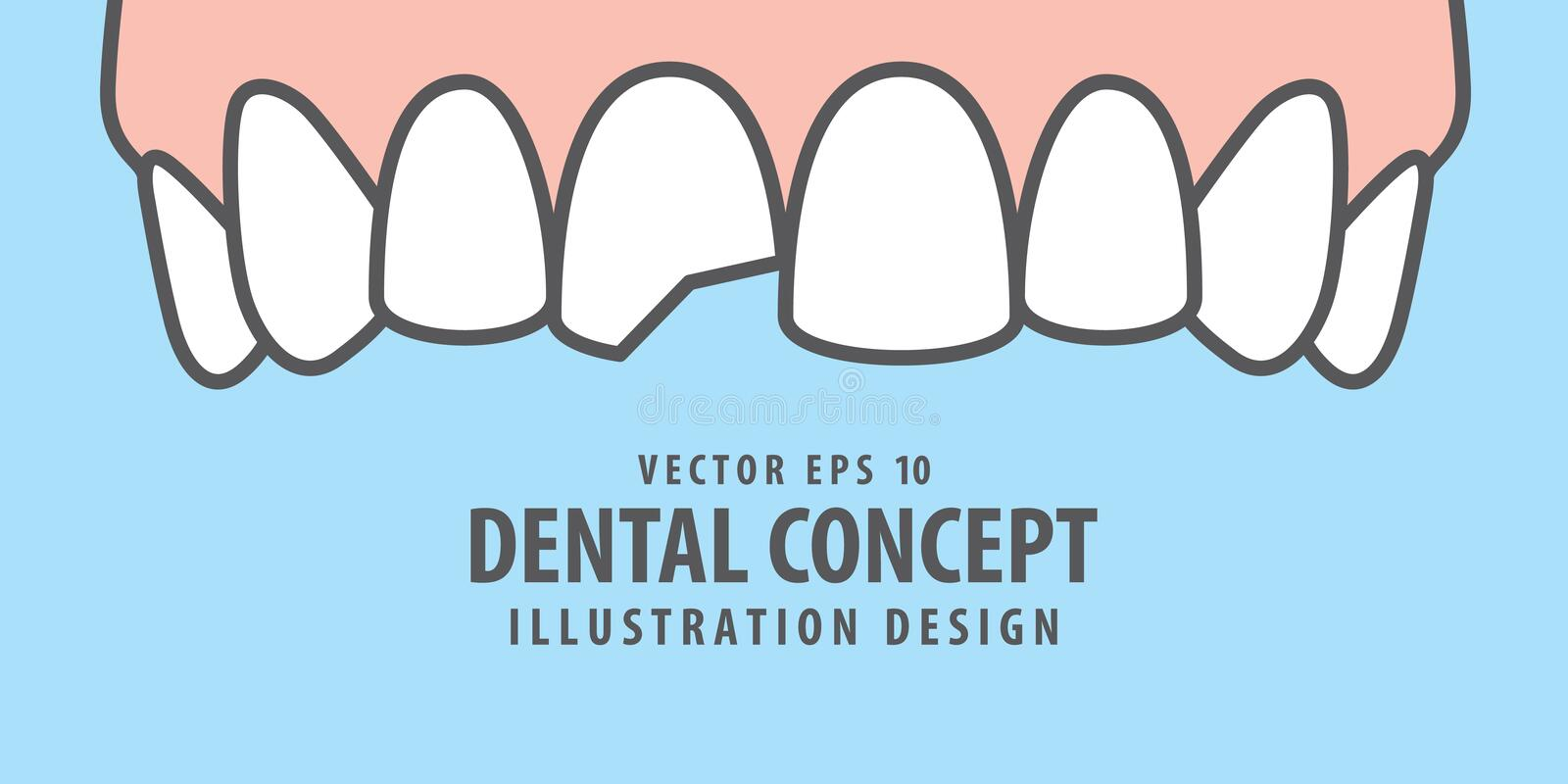 Banner Upper Chipped tooth illustration vector on blue background. Dental concept. royalty free illustration