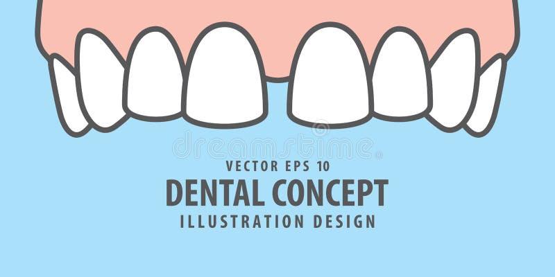 Banner Upper Diastema teeth illustration vector on blue background. Dental concept. royalty free illustration