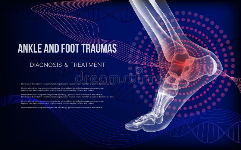 Bannière bleu-foncé horizontale pour des traumatismes de joints de cheville et de pied illustration de vecteur