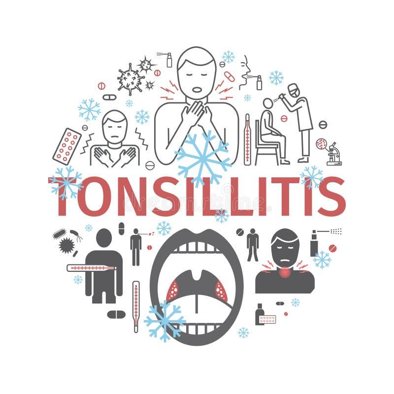 Bannière d'amygdalite Symptômes, traitement Graphismes réglés Signes de vecteur pour des graphiques de Web illustration libre de droits