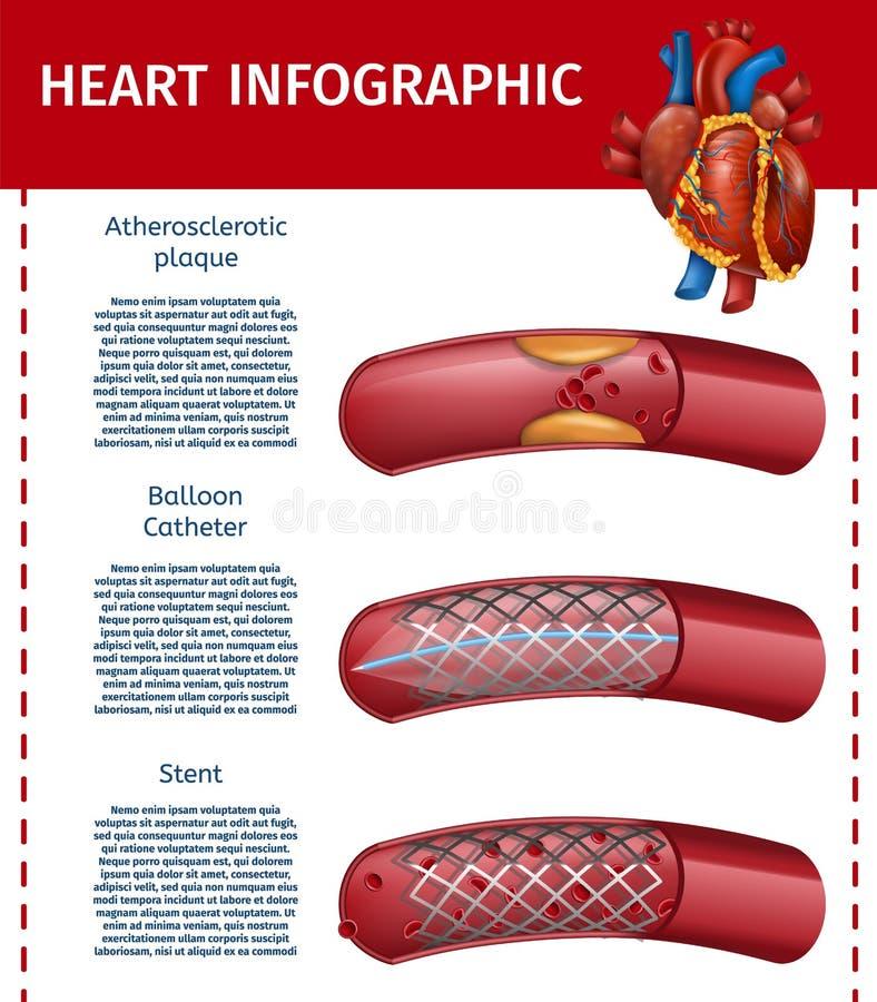 Bannière réaliste de thérapie de chirurgie d'Infographic de coeur illustration libre de droits