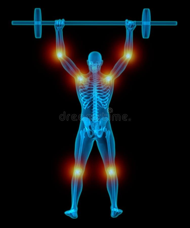 Bardzo medically ścisła i szczegółowa 3D ilustracja mężczyzna udźwigu półprzezroczyści ciężary podczas gdy mieć ból w jego złącza ilustracji