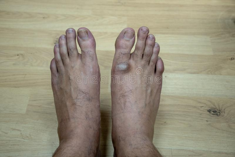 Bare feet right leg medical issue hard dead skin above toe. Hard dead skin above the toe of right foot due to sitting on ground for extended hours royalty free stock photo