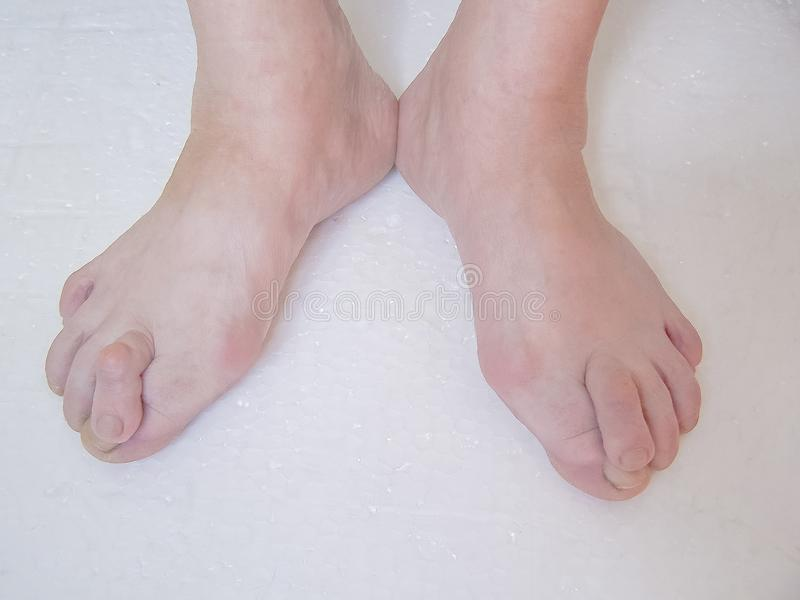 Bare foots which have Hallux Valgus problem. royalty free stock photos