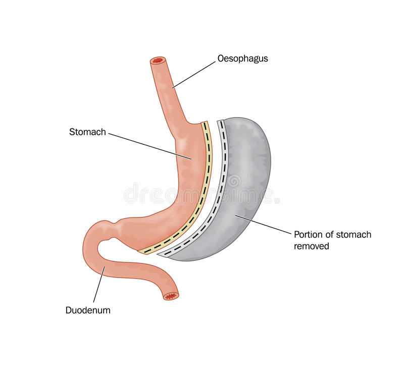 Bariatric surgery involving removing portion of stomach royalty free illustration