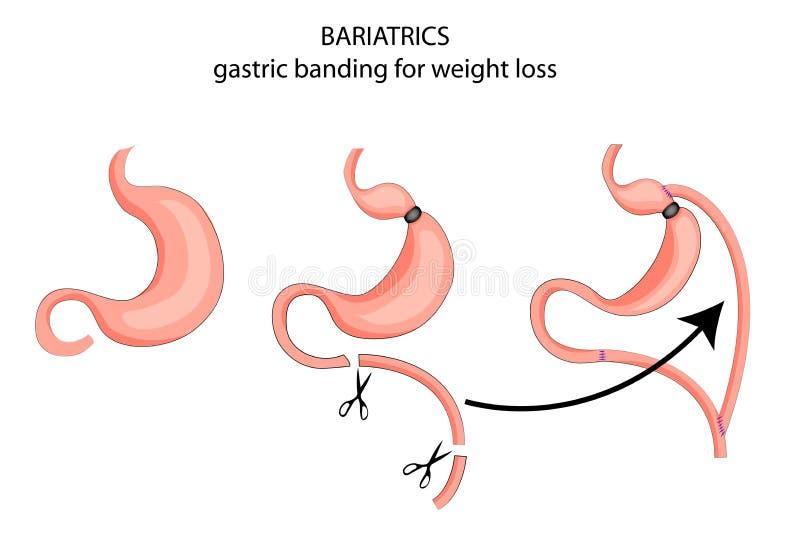 Bariatrics fascia gastrica con gli scopi di perdita di peso royalty illustrazione gratis