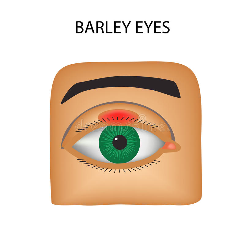 Barley eyes. Purulent inflammation. The structure of the eye. Infographics. Vector illustration on isolated background vector illustration