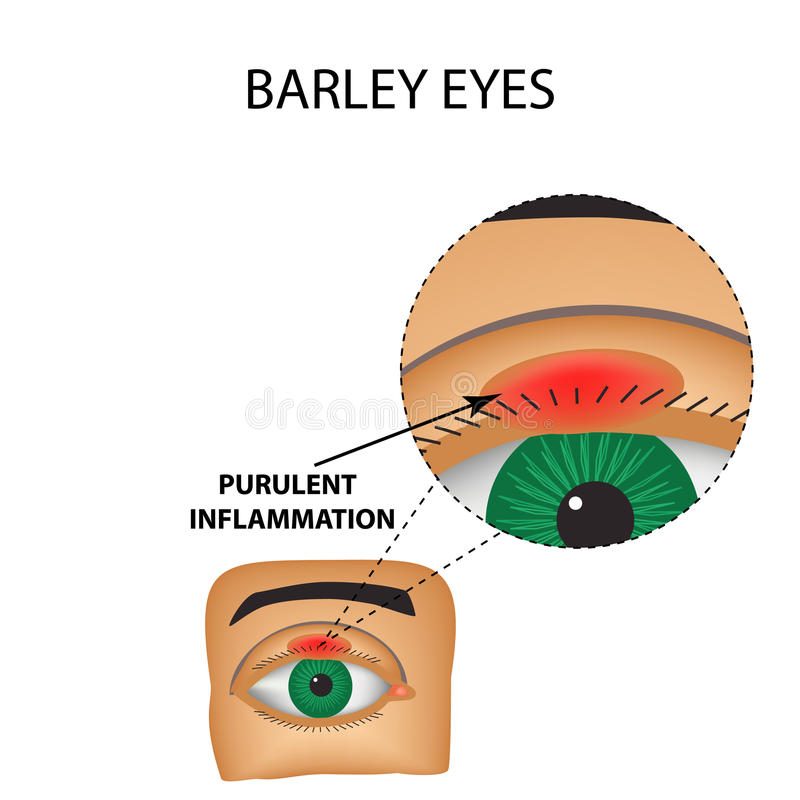 Barley eyes. Purulent inflammation. The structure of the eye. Infographics. Vector illustration on isolated background royalty free illustration