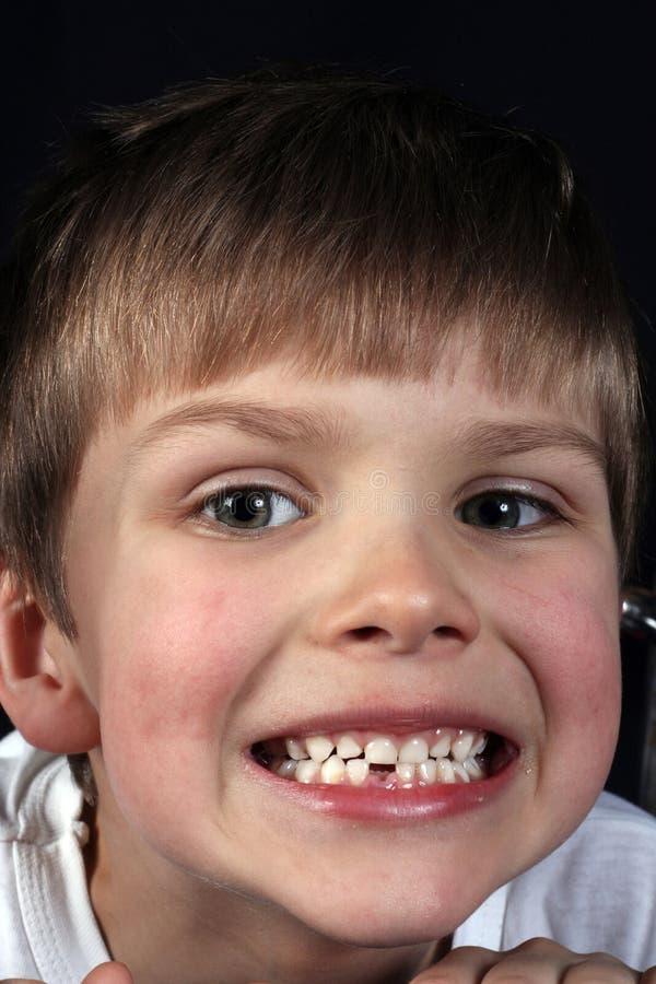 Download Barn fotografering för bildbyråer. Bild av tand, barn, stående - 502429