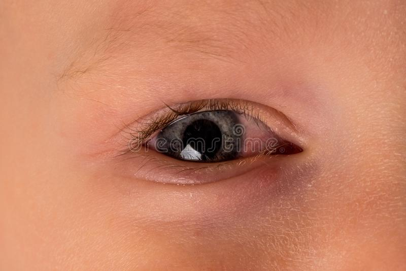 Barn med allergin, bindhinneinflammation hans ögon Sjuk pys Cl royaltyfri fotografi