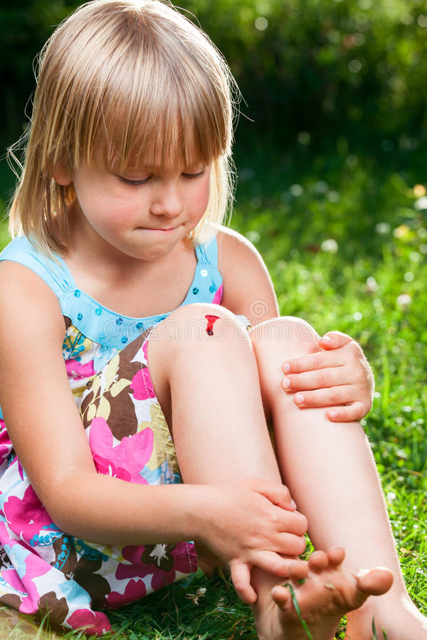 Barn med det sårade knäet royaltyfria bilder