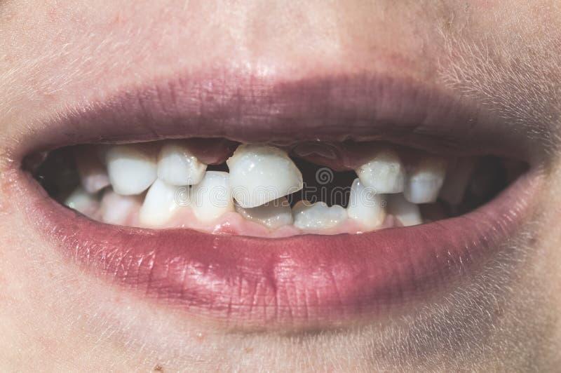 Barnet visar saknade tänder royaltyfri fotografi