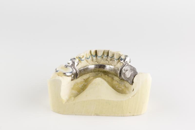 Bas av omfamningprotesen på gipsmodellen arkivfoton