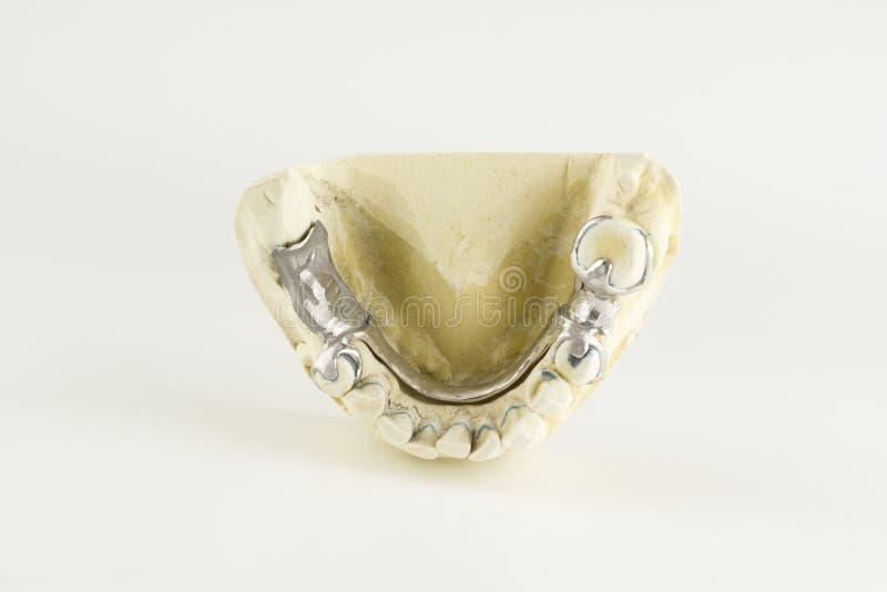 Bas av omfamningprotesen på gipsmodellen royaltyfria bilder