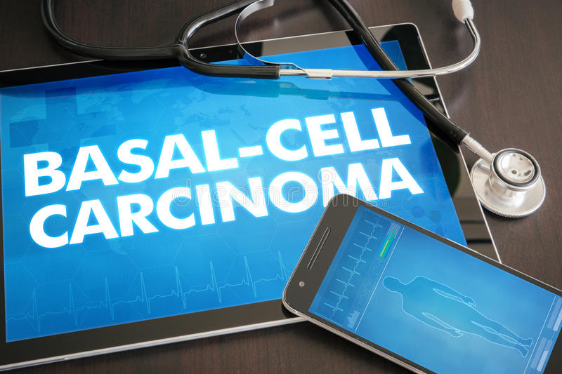 Basal-cell carcinoma (cancer type) diagnosis medical concept on royalty free stock images