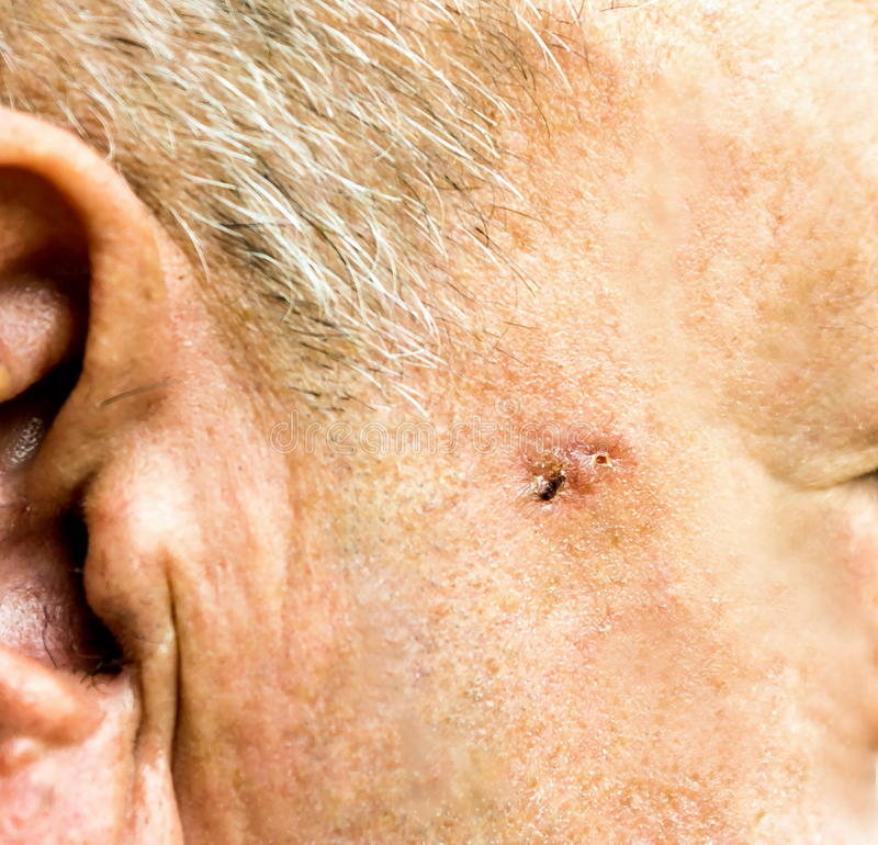 Basal Cell Carcinoma on the face of older man stock photos