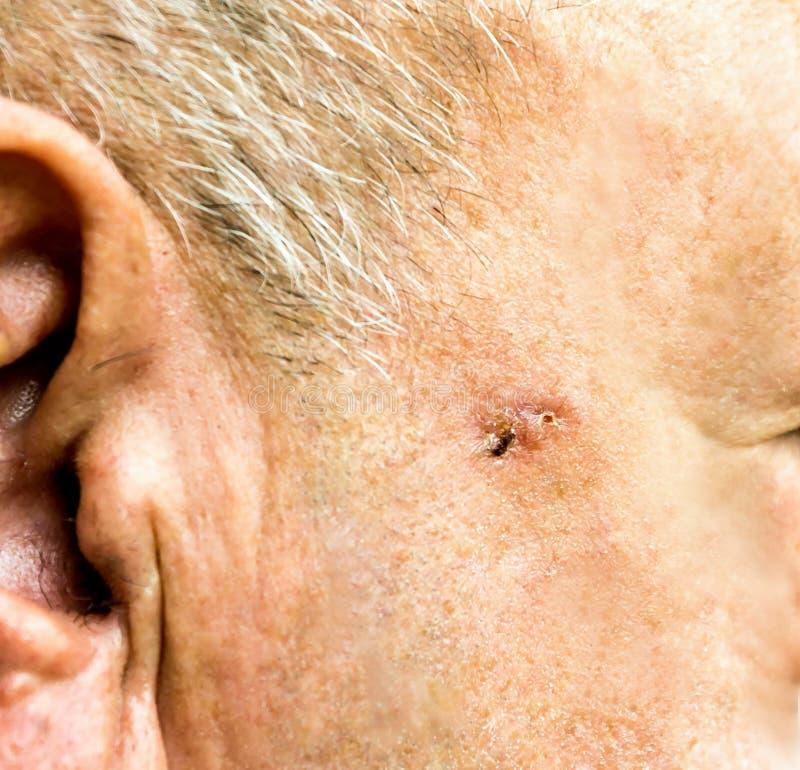 Basiscelcarcinoom op het gezicht van de oudere mens stock foto's