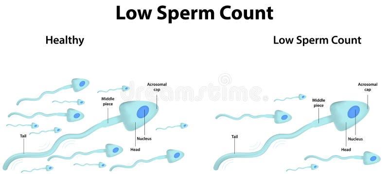 Basse numération des spermatozoïdes illustration de vecteur