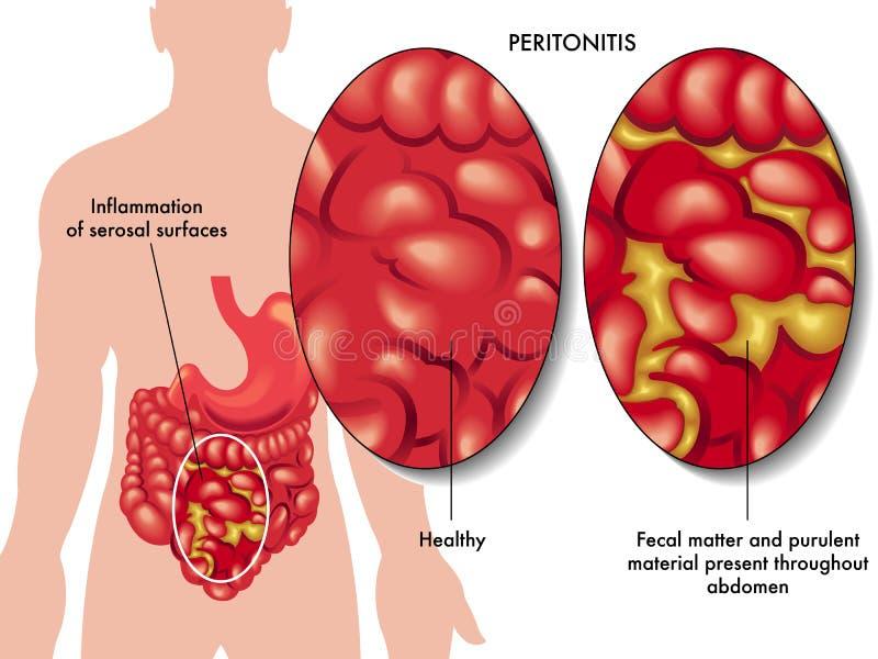 Bauchfellentzündung stock abbildung