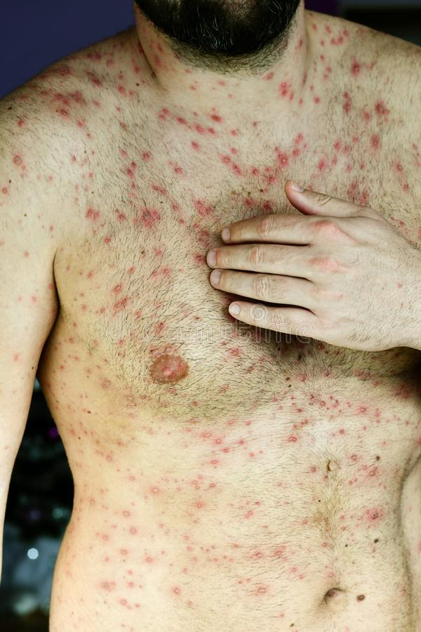 Man with chickenpox. Bearded Man with chickenpox ,varicella virus stock images