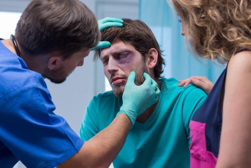 Beaten man with black eye stock image