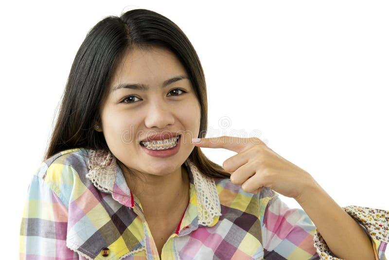 Beauté asiatique avec les supports dentaires images stock